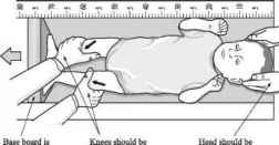 4449_11_7-supine-length-measurement-child